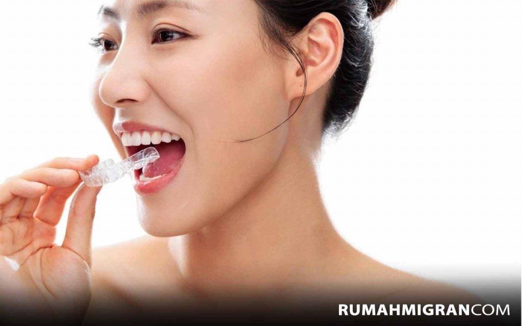 Alat untuk Merapihkan Gigi